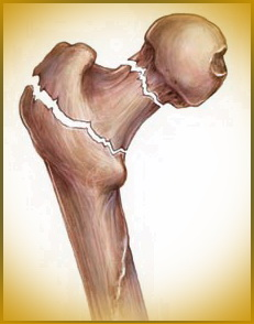 hip fracture as a result of osteoporosis
