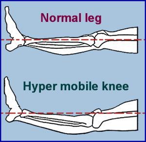 hyper mobile knee
