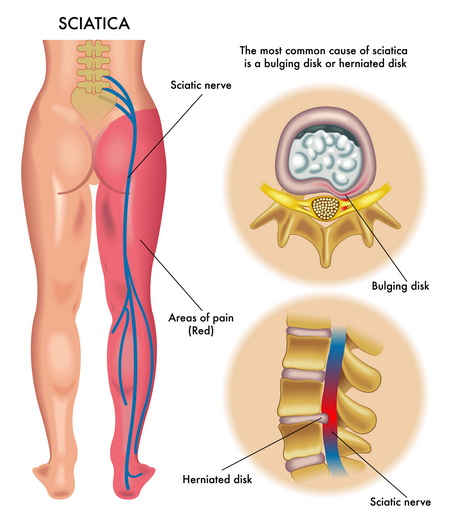 sciatic nerve pain area